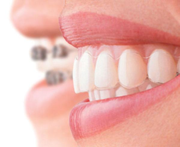 visitapp ortodonzia